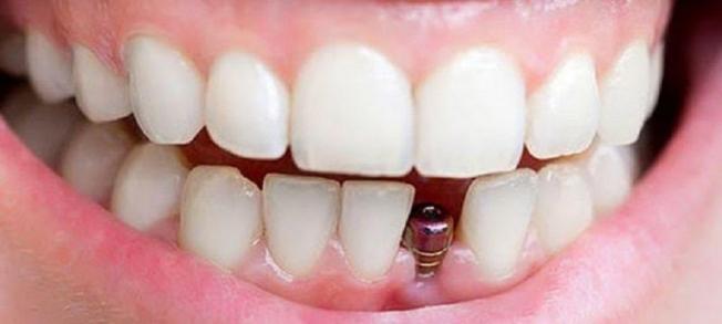 Kayıp Dişler Sosyal Yaşamı Etkiliyor!
