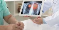 Akciğer kanserinde tarama yaşı düştü
